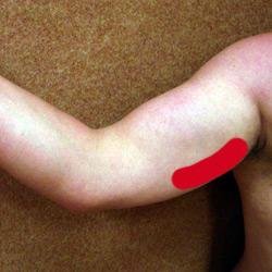 venenthrombose im arm